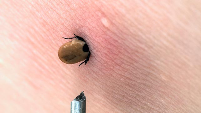 642x361_is_it_lyme_disease_image_2
